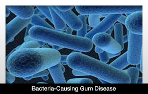 бактерия-зъболекар-русе