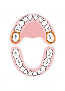 стоматолог-млечни-зъби-русе-10