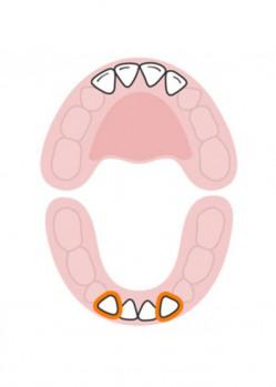 стоматолог-млечни-зъби-русе-3