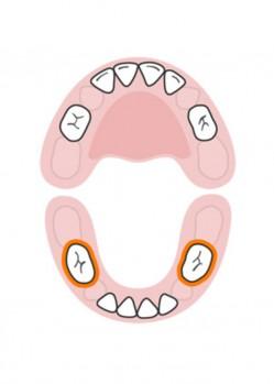 стоматолог-млечни-зъби-русе-5