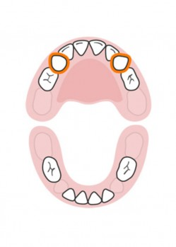 стоматолог-млечни-зъби-русе-6
