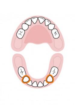 стоматолог-млечни-зъби-русе-7