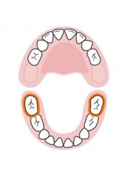 стоматолог-млечни-зъби-русе-9