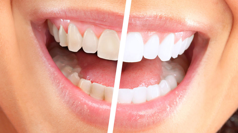 ToothWhitening-FeaturedImage