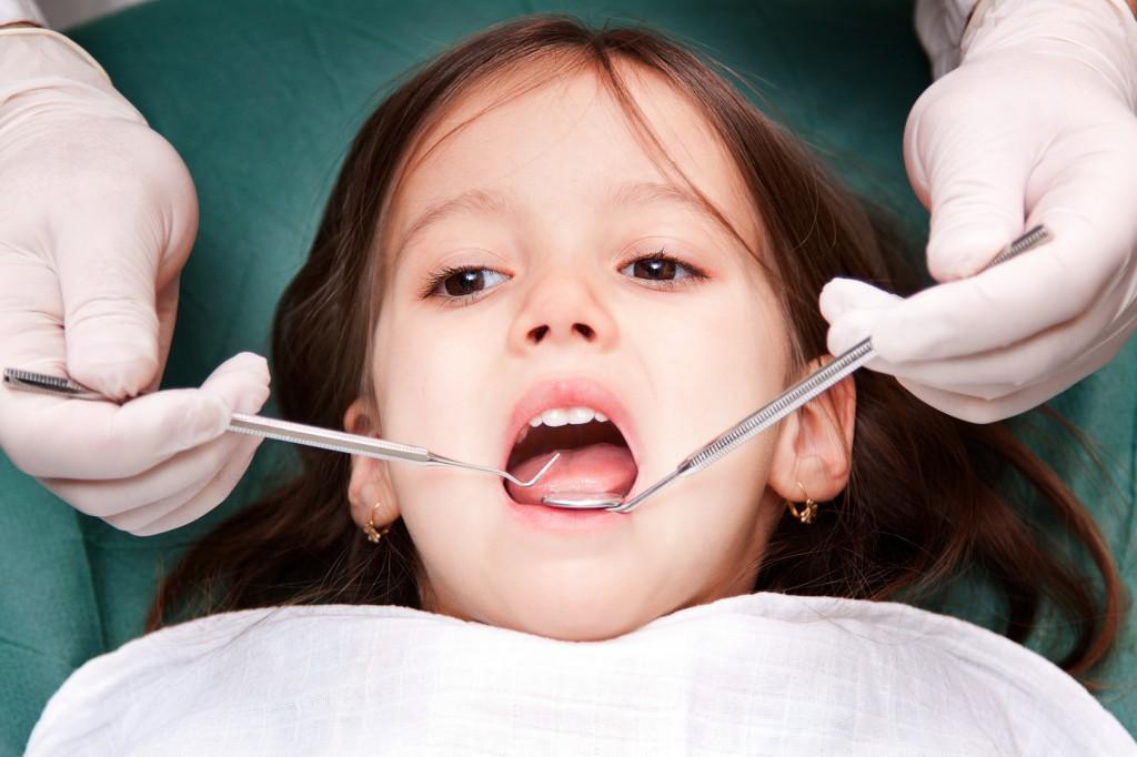 Стартита безплатното поставяне силанти на постоянните зъби на децата от 5 до 8 години